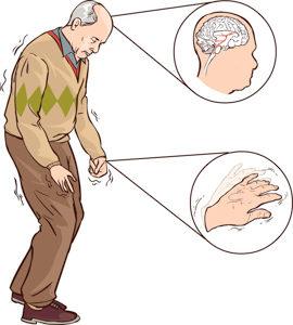 Parkinson Sindromu