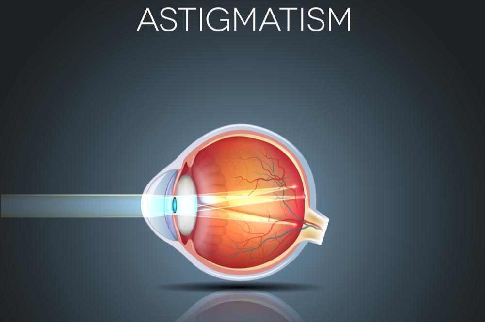 Astiqmatizm nedir?